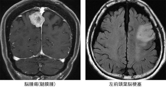 脳ドック_IM_2